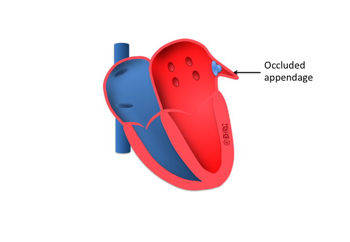 left atrial appendage occlusion | the birmingham heart rhythm group, Human Body